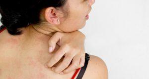 Mengobati penyakit gatal di badan dan kulit tubuh